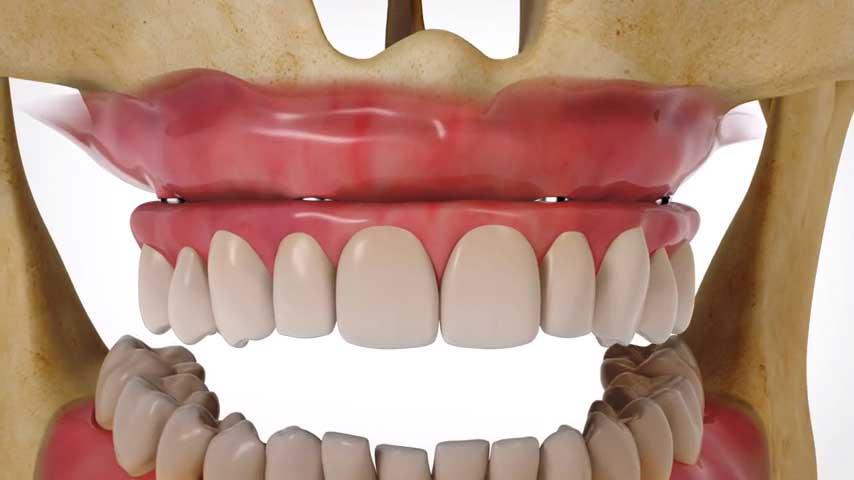 Teljes fogsor