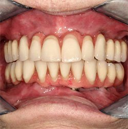 Fogászat, fogorvos az All On Four kezeléshez