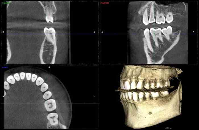 CBCT röntgen, implantálás Újpest