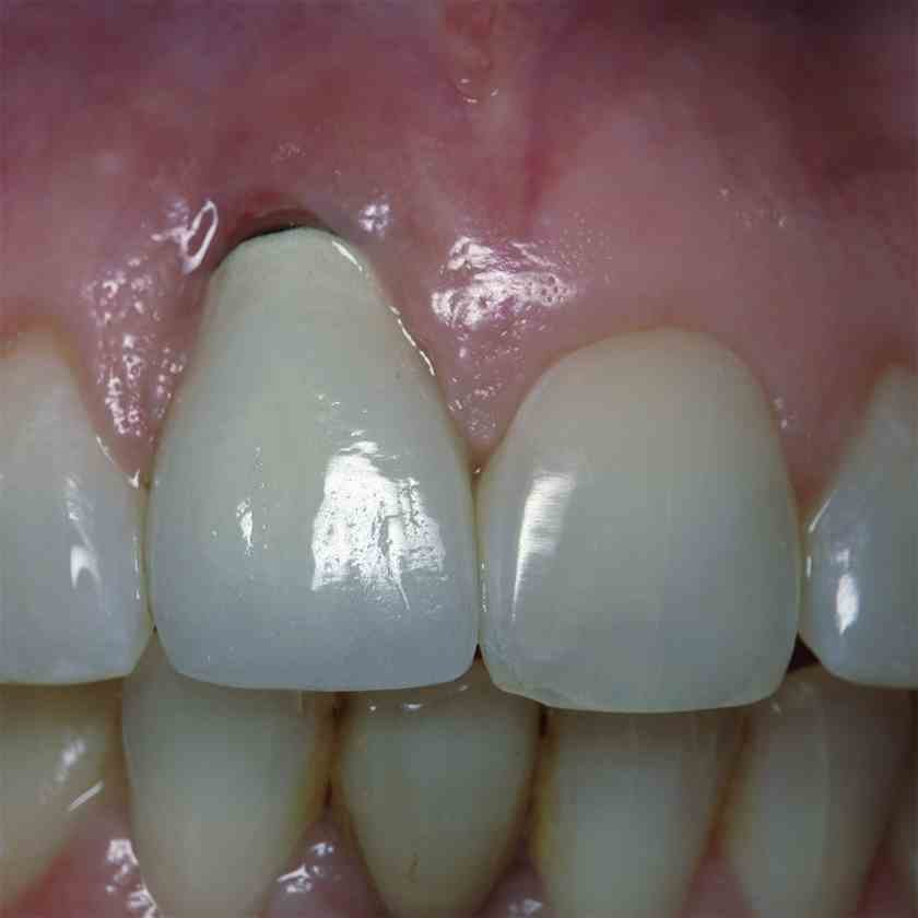 Implantáció utáni ínyplasztika