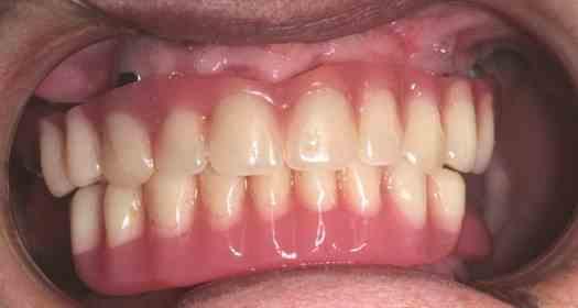 All On Four implantációs kezelés